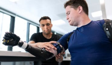 Engineer Fitting Prosthetic Arm