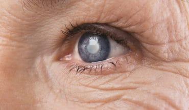Alzheimer's and cataract surgery